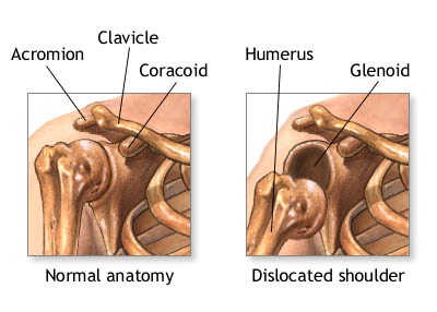shoulder-disloaction